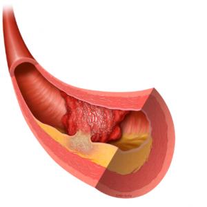 crestor vs simvastatin